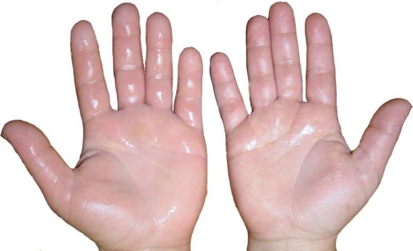 how-to-stop-sweaty-hands
